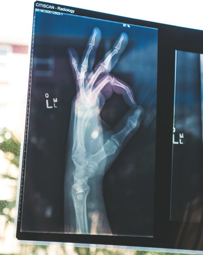 Photo of x-rayed hand giving OK sign